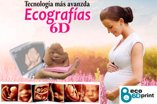 En el centro médico Iturrama te darán un recuerdo inolvidable de tu bebé con una ecografía 3D + 4D, una escultura de él y un pendrive con las imágenes y vídeos
