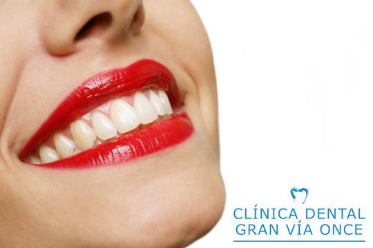 Presume de una sonrisa más blanca con un blanqueamiento dental con férulas a medida o Led en la Clínica Dental Gran Vía Once ¡Incluye kit ambulatorio, gel blanqueador, limpieza y fluoración!