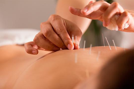 ¿Llevas tiempo con molestias musculares u otros problemas? No esperes más para buscar una solución y acude a una sesión acupuntura Urzelai