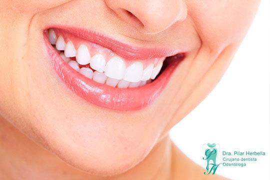 ¡Luce unos dientes 6 tonos más blancos en Pilar Herbella! La sesión incluye además limpieza bucal y pulido de manchas
